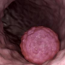Esophagus tumor